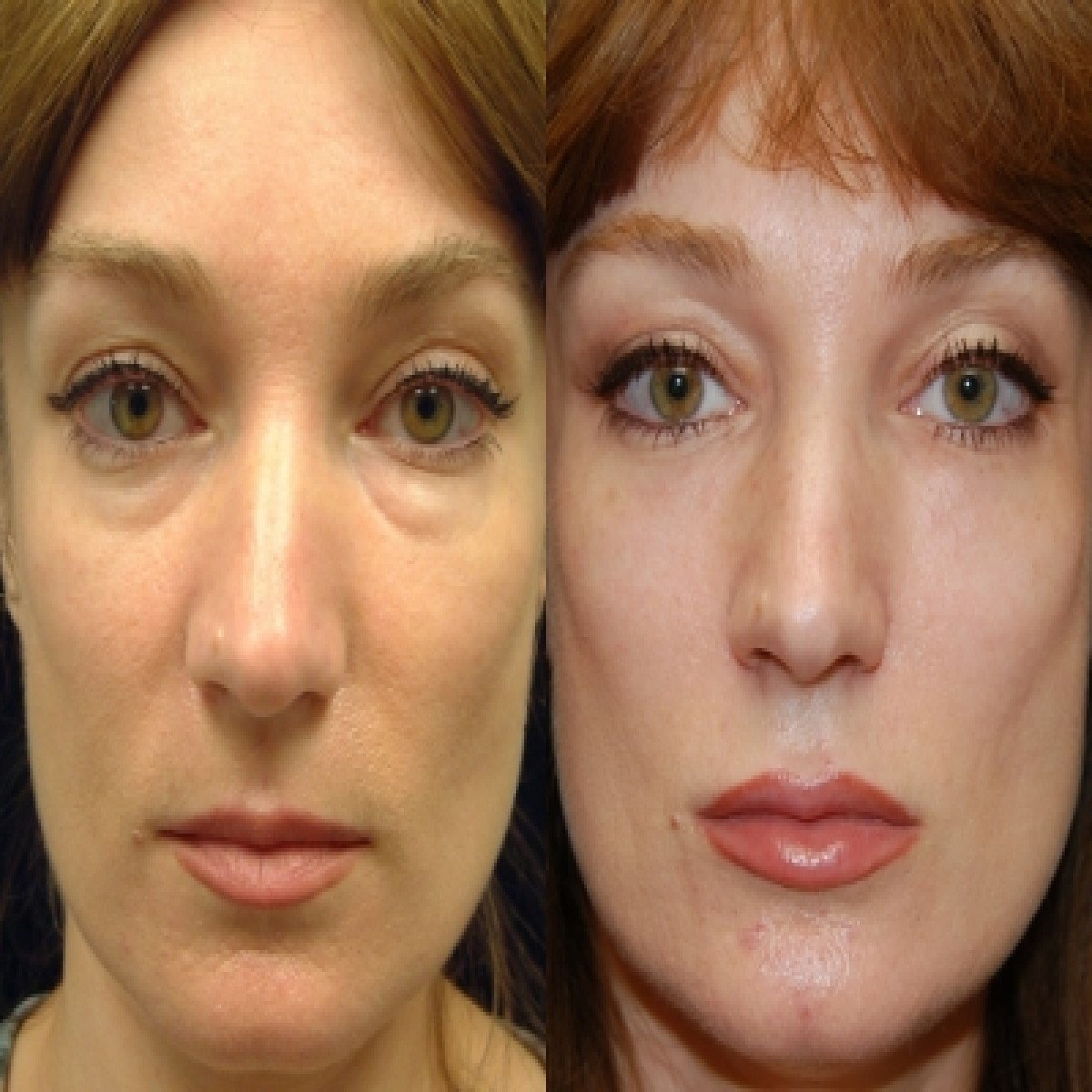liquid face lift and facial injections