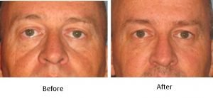 lower-eyelid-filler-with-bellafill