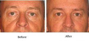 lower-eyelid-filler-with-bellafill