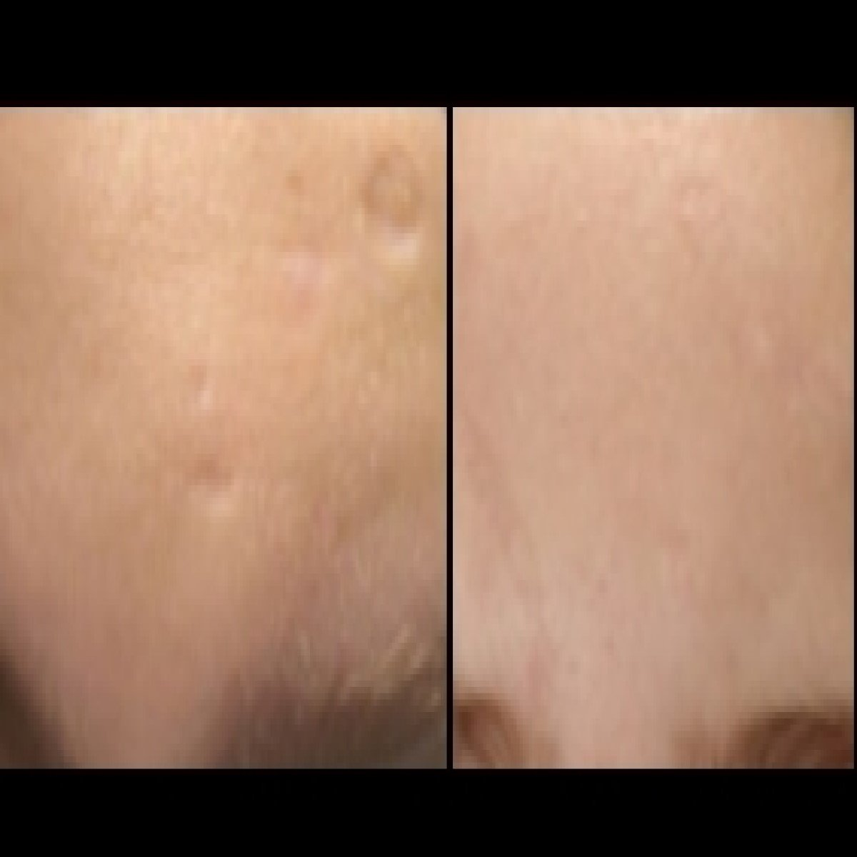 Bellafill fo Acne scars of forehead before and after