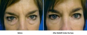 bellafill-for-lower-eyelid-bags-before-and-after