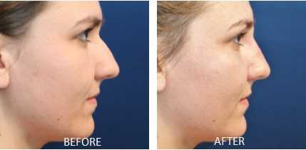 Artefill Bellafill Liquid Rhinoplasty before and after