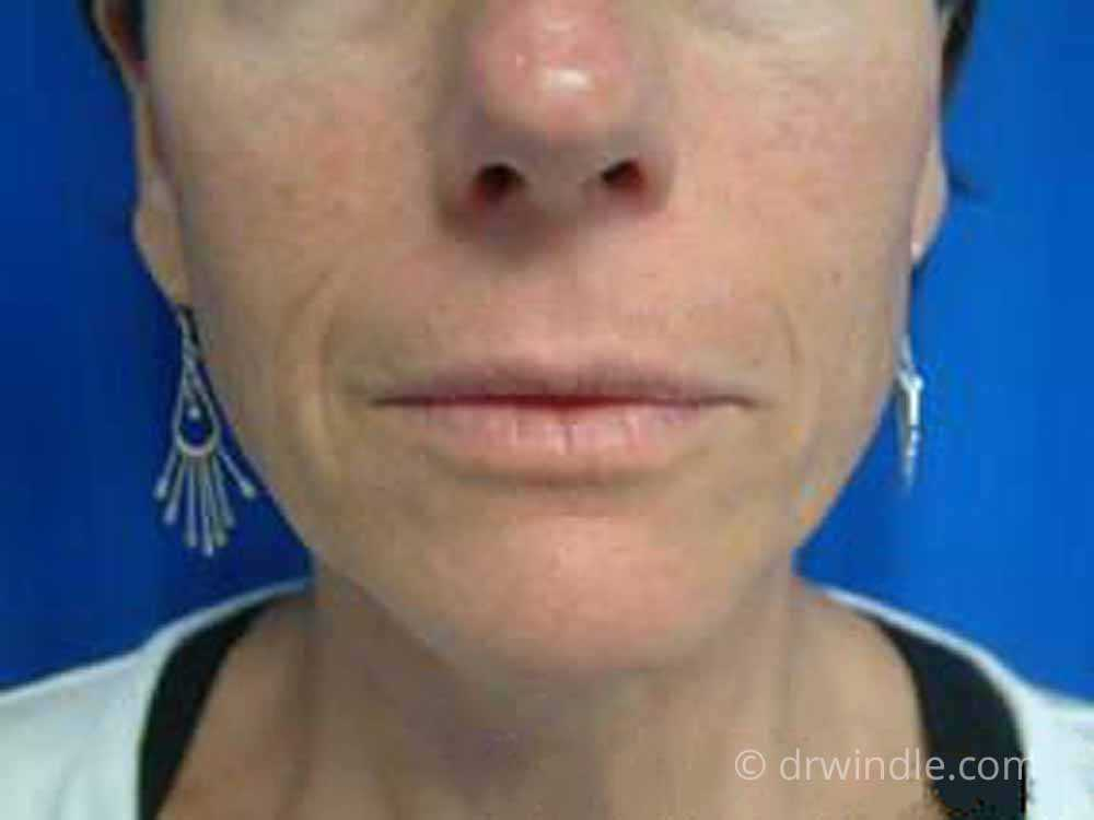 Before treatment with Bellafill Artefill nasolabial folds