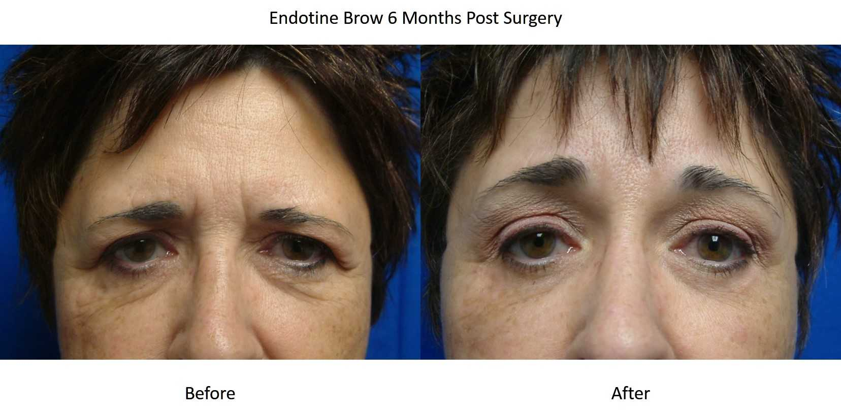 brow lift or forehead lift by dr  windle  voted best of