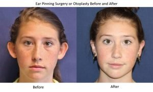 ear-pinning-surgery-or-otoplasty-before-and-after
