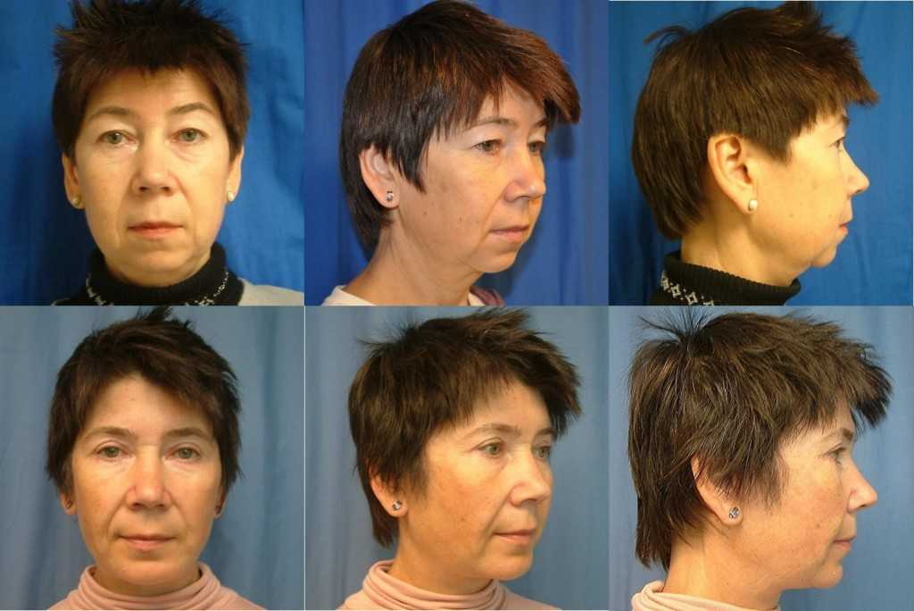 Top Neck Lift Specialist for Seattle Bellevue and Kirkland