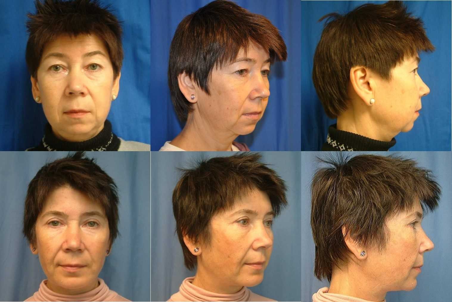 Facelift Before and After with Chin Augmentation and Eyelid Surgery