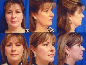 Neck lift before and after photos of a Dr. Windle Bellevue, Kirkland Seattle area patient