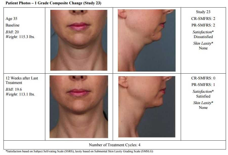 Kybella Injections for Double Chin in Seattle – DR  BRIAN WINDLE