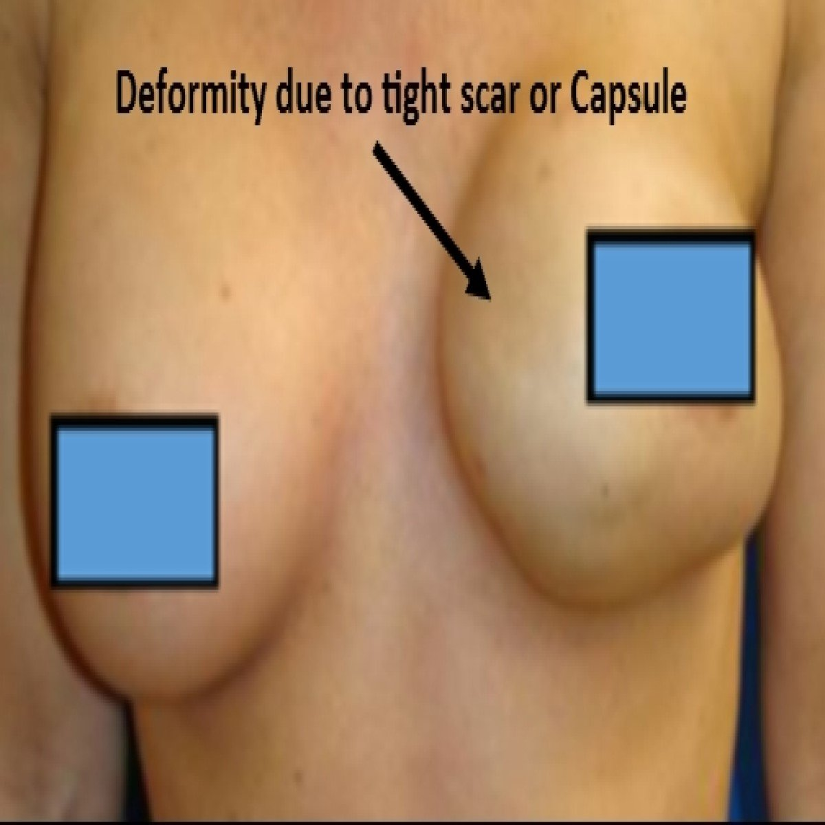 Breast Augmentation with Capsule Contracture