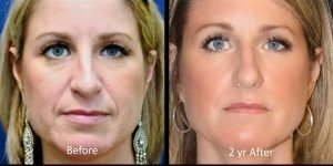 Seattle bellafill-before-and-after-nasolabial-folds-and-bellafill-under-eyes