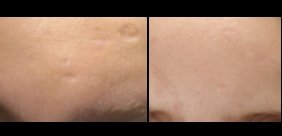 Seattle Bellafill-fo-Acne-scars-of-forehead-before-and-after