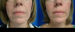 Seattle juvederm-for-laugh-lines