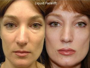 Seattle liquid-face-lift