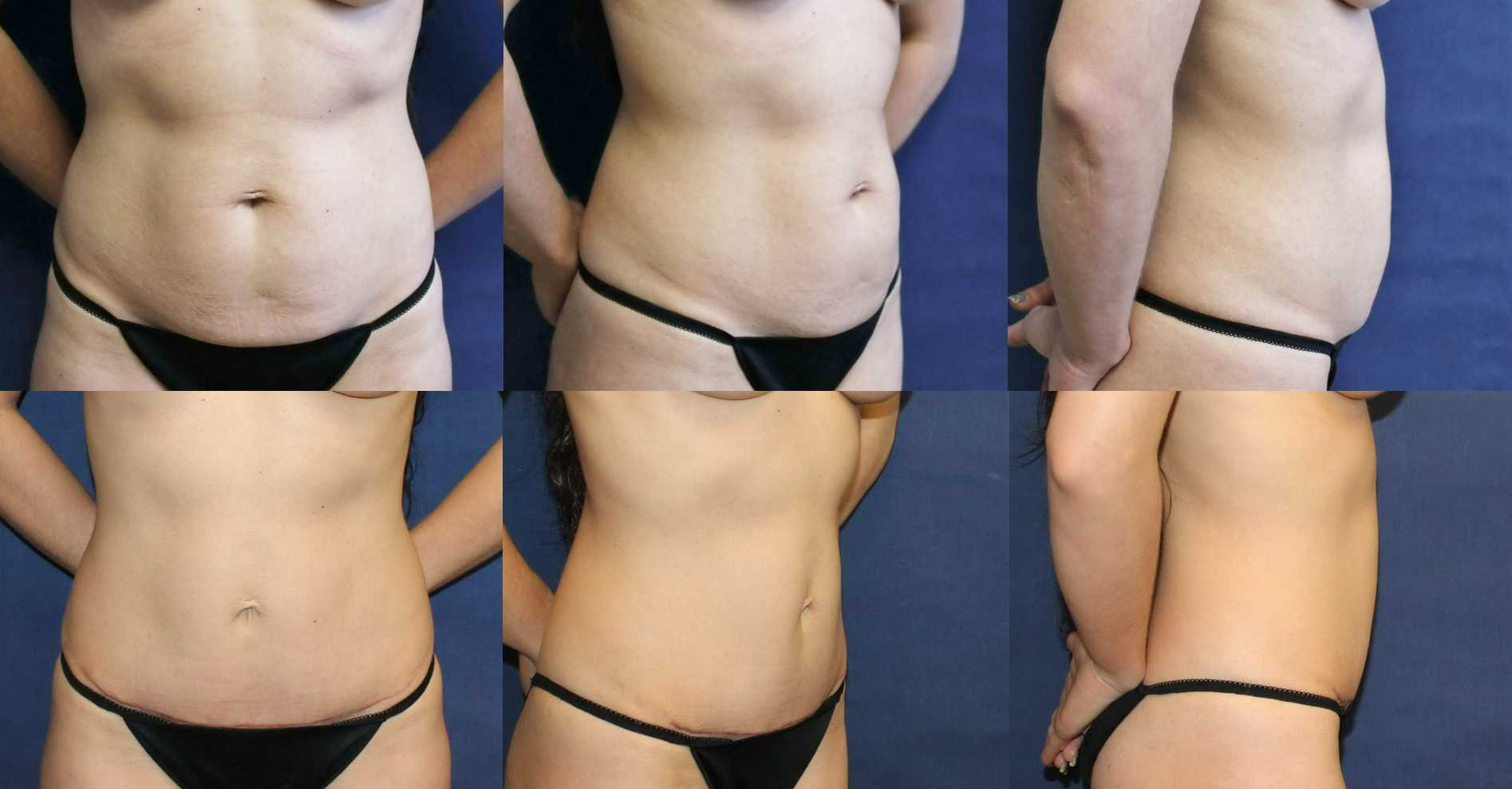 Seattle mini-tummy-tuck-no-drain
