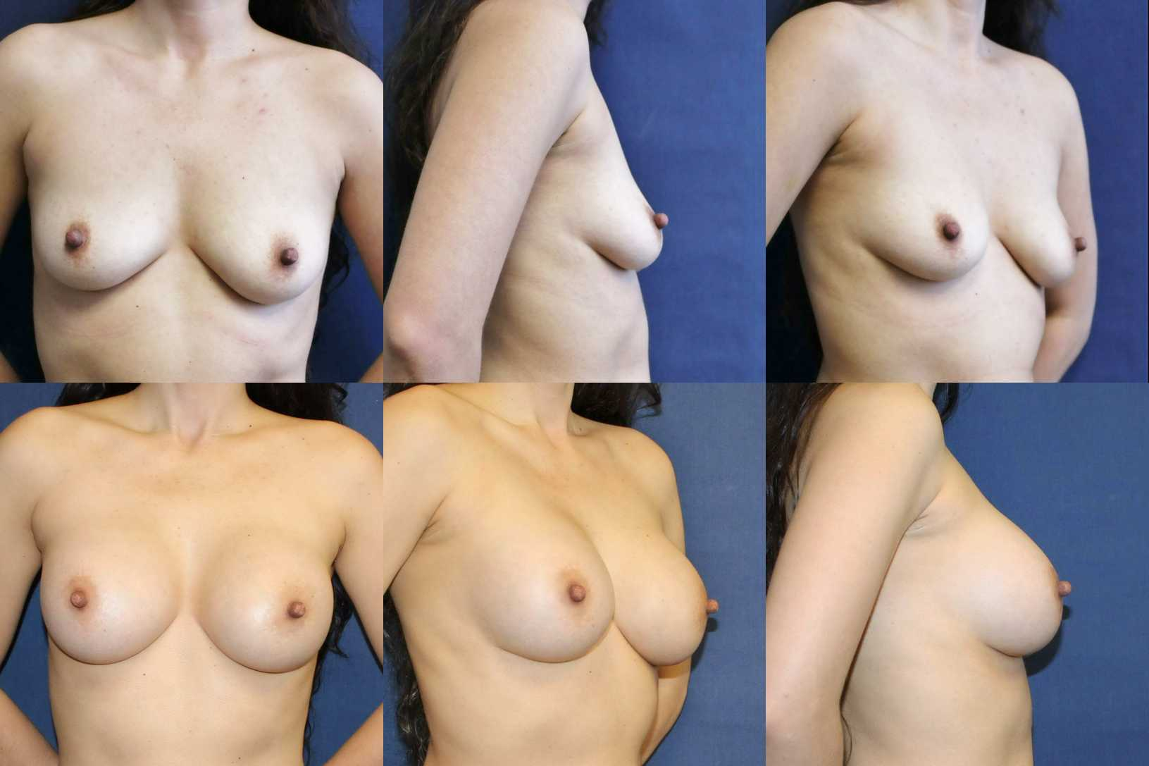 Seattle breast-augmenation-before-and-after