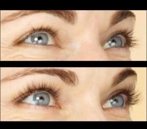 Seattle latisse-eyelashes-before-and-after