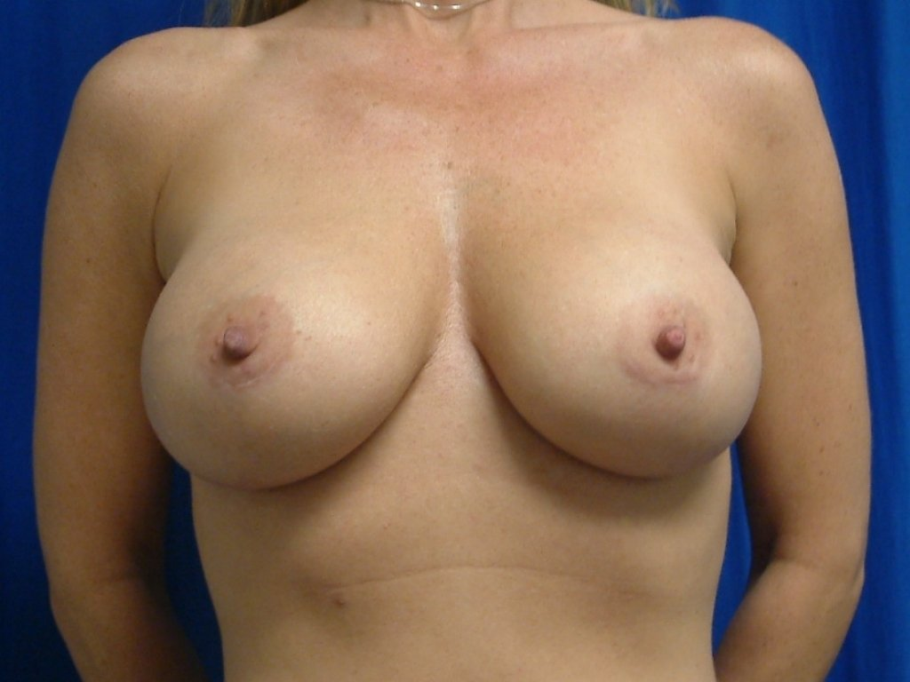 After Breast Augmentation Sientra Shaped Breast Implants