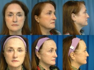 face-lift-neck-lift-and-bellarfill