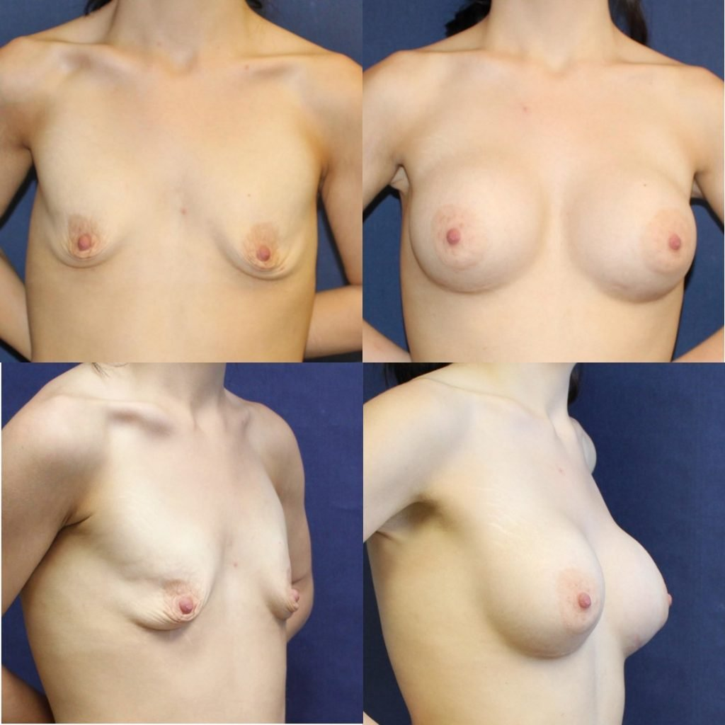 Teenage girls with a breast augmentation, girls sex amateur