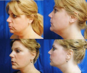 neck-lift-before-and-after