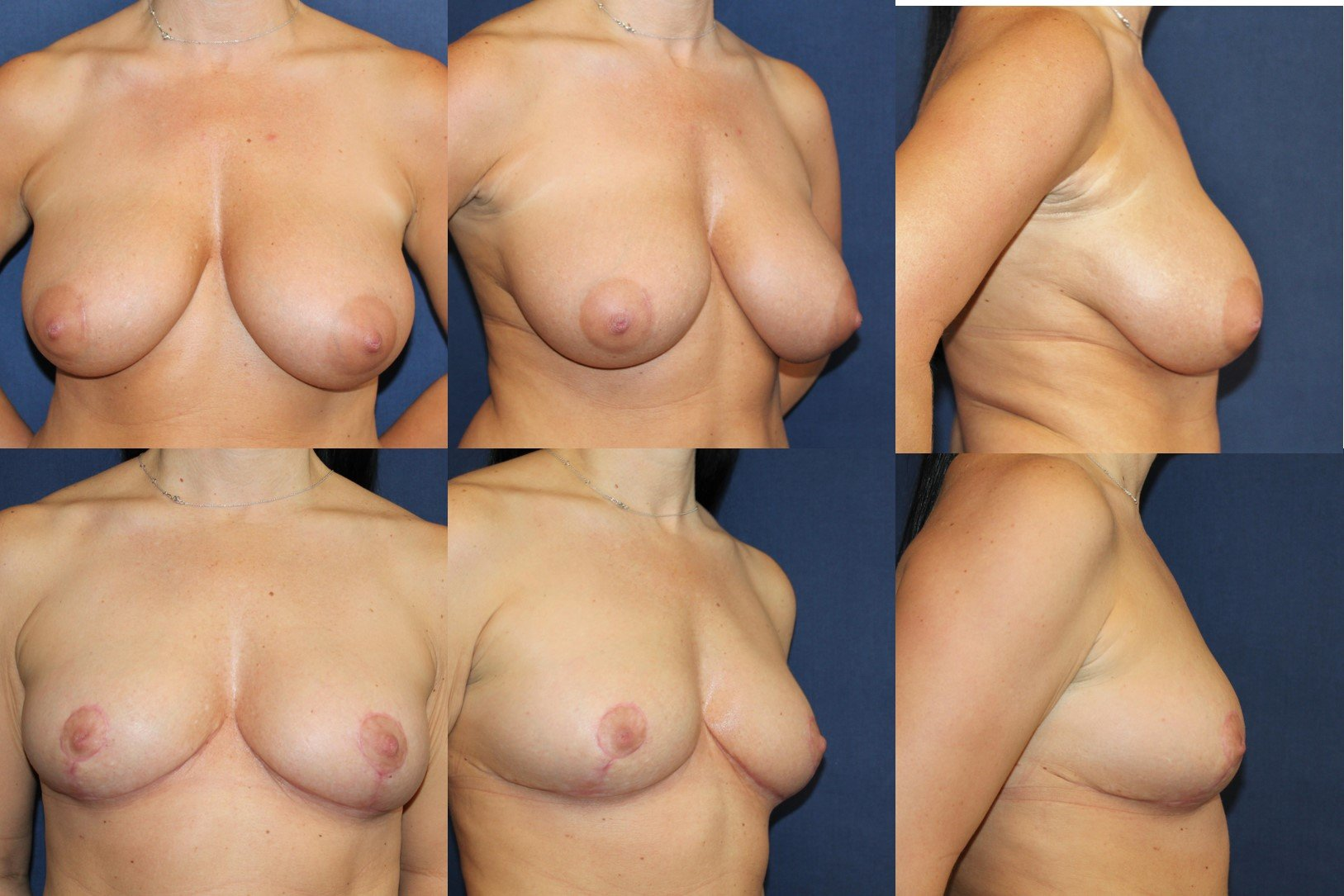 Medical breast lift for sagging breasts